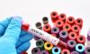 В Новосибирской области коронавирус выявлен ещё у 71 человек