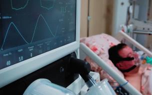 В Петербурге для больных коронавирусом развернуто 6 248 коек