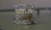 В ногу со временем: В СПбГУ предложили изготавливать зубные протезы на 3D-принтере