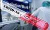 Названы регионы России, где зафиксированы новые случаи заражения коронавирусом на 9 апреля