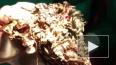 В Индии хирурги извлекли из желудка девушки 1,6 кг ...